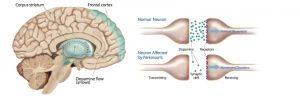 CBD olie tegen Parkinson Hersenen