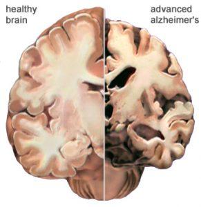 CBD olie tegen alzheimer hersenen